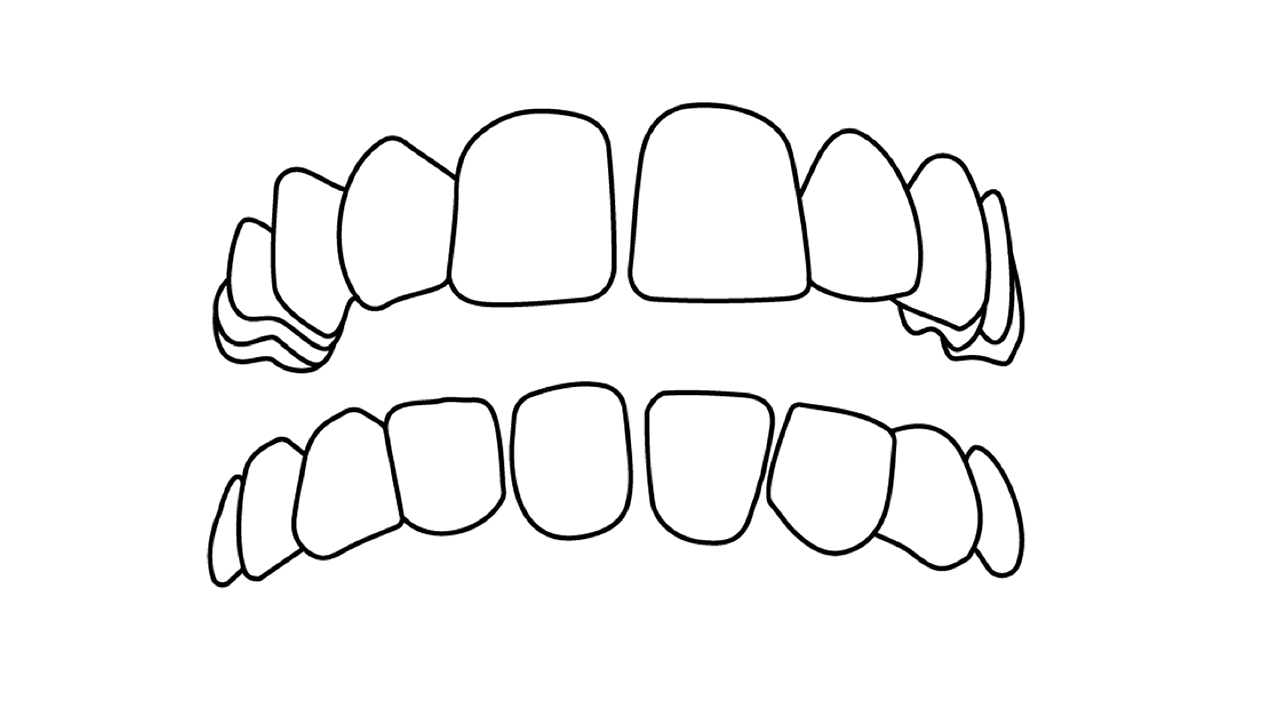Crowded Spaced out teeth